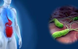 Анацидный гастрит: причины, диагностика, диета, профилактика
