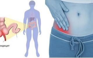 Как болит аппендицит: локализация и дополнительные симптомы