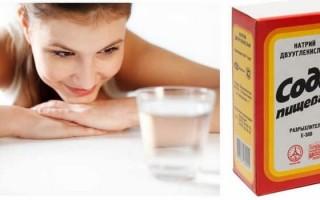 Сода при изжоге: способы применения, противопоказания, побочные действия