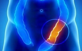 Спаечная кишечная непроходимость, описание патологии, диета