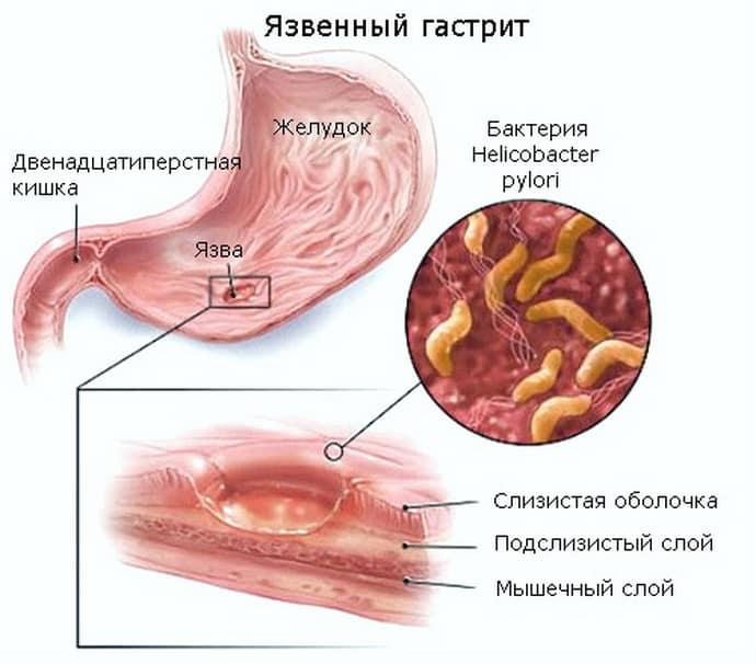 Язвенный гастрит: причины возникновения, лечение