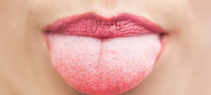 Налет на языке при анацидном гастрите