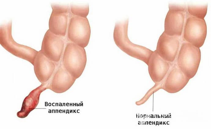 Признаки аппендицита