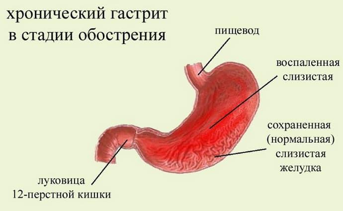 Хрогический антральный гастрит