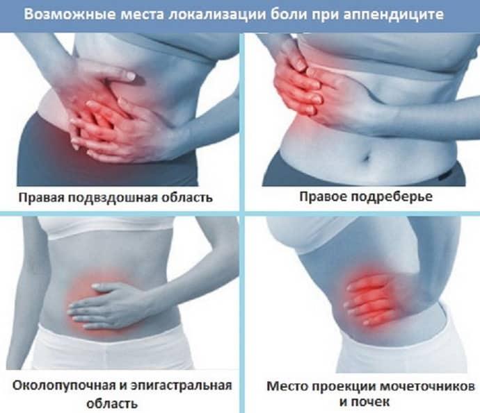 Где болит аппендицит