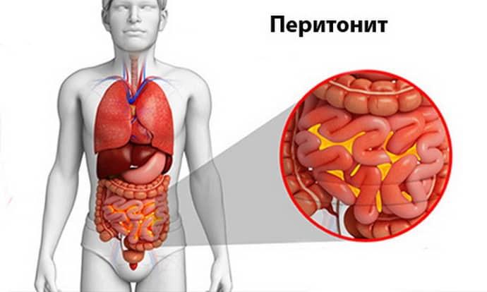 Причины аппендицита с перетоеитом