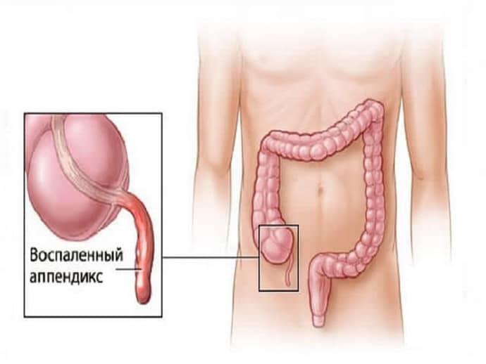 Симптомы паппендицита