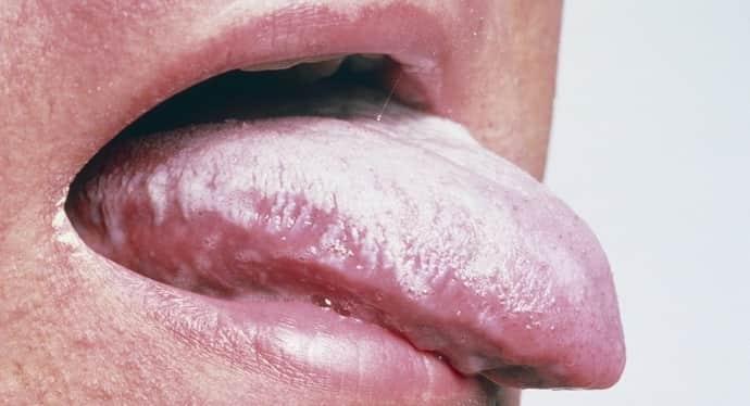 Налет неа языке при гастрите