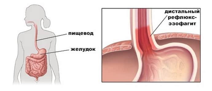 боль в грудной клетке и изжога при эзофагите
