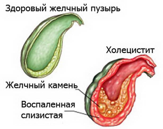 Симптомом холецистита может быть боль в животе и изжога.