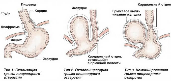 Симптомом грыжи может быть боль в животе и изжога.