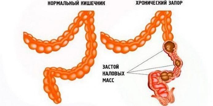 Запор при дисбактериозе