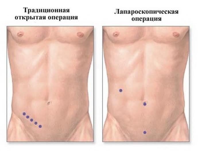 Лапароскопическая операция по удалению аппендицита