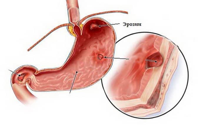 Симптомы гастропатии