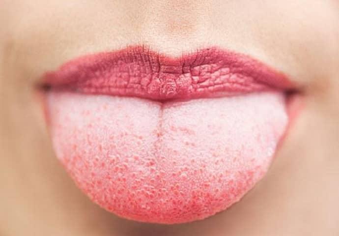 Налет на языке при гатрите