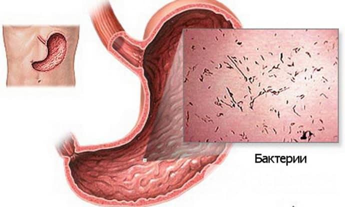 Причины гастроэтнетоколита