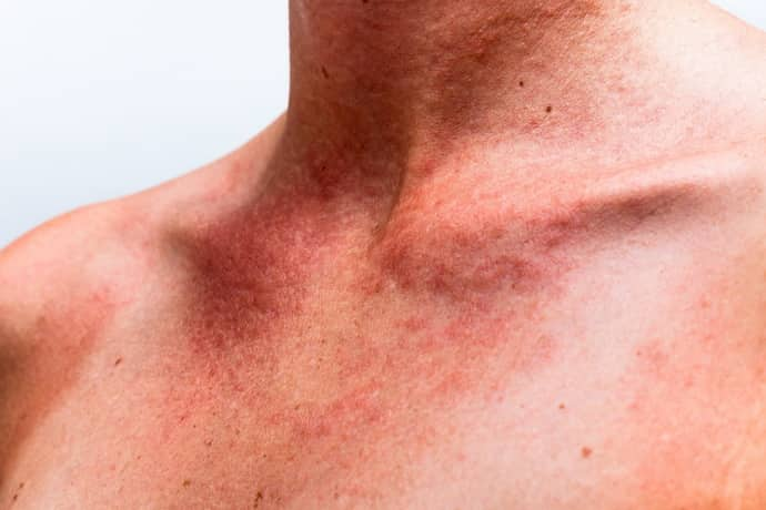 гастроэтнероколит при аллергии
