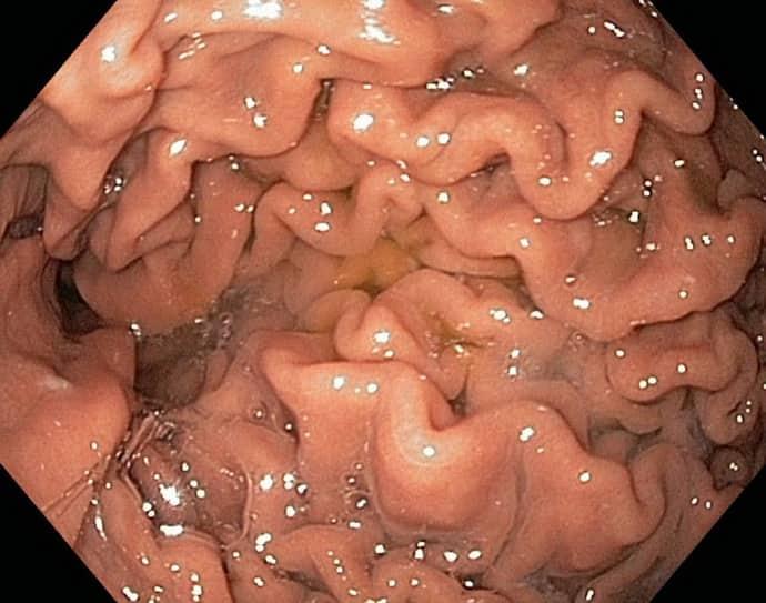 Симптомы гиперрластического гастрита