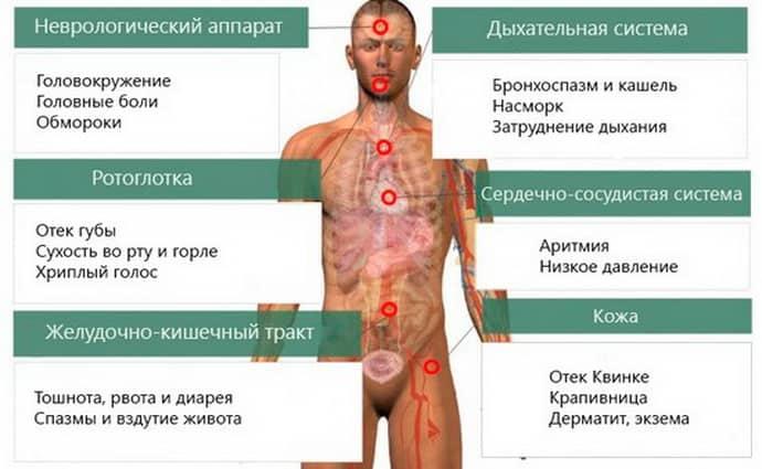 Пищевая аллергия; симптомы