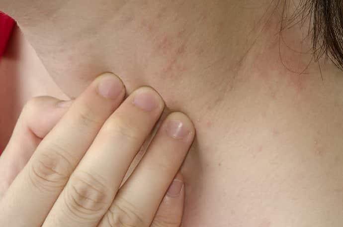 аллергия от тыквы