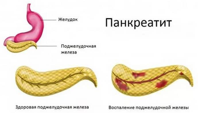 Изжога при панкриатите