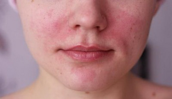 Аллергия на йогурт