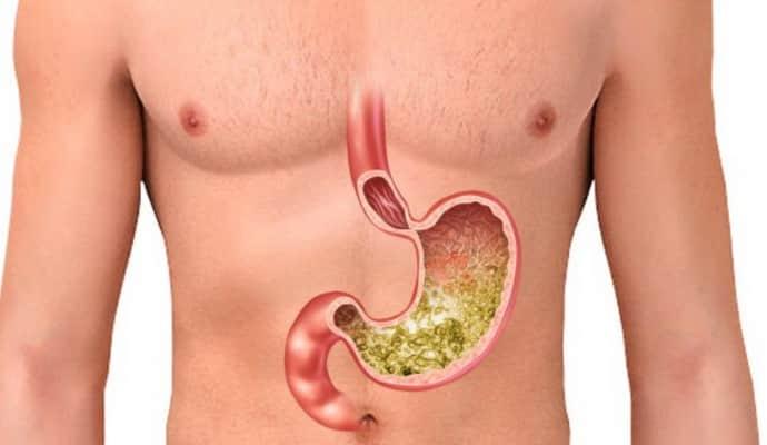 Определение кислотности желудка