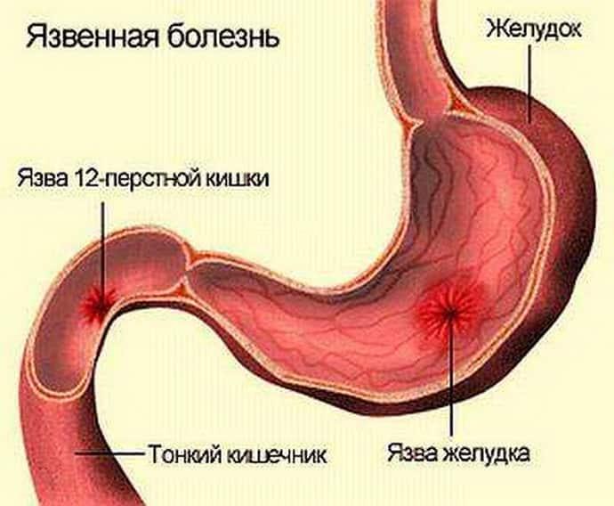 Как язва желудка влияет на цвет кала