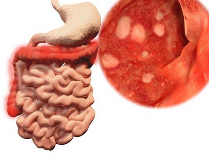 Почему возникает колит кишечника