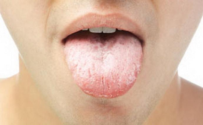 Белый налет на языке при гастрите