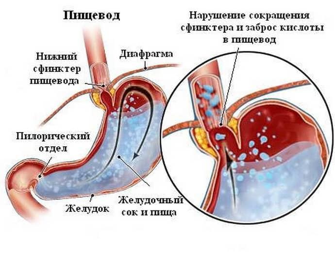 Рефлюкс гастрит – причина кома в горле