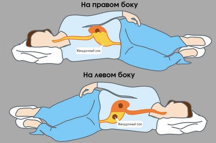 Все о том на каком боку спать при изжоге
