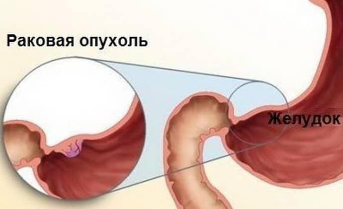 Способы диагностики очагового атрофического гастрита