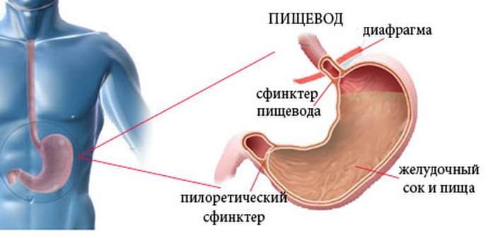 Рефлюкс гастрит