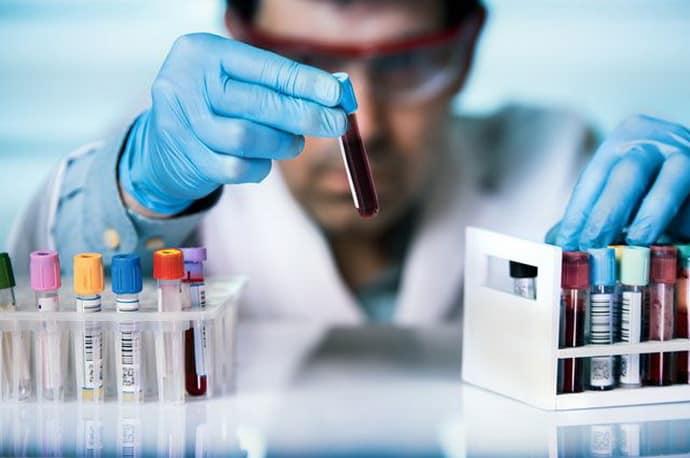Анализы при аппендиците
