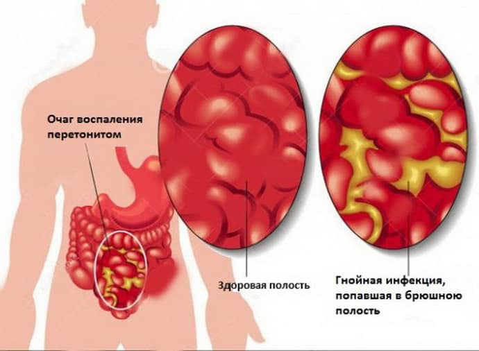 Перитонит после удаления аппендицита