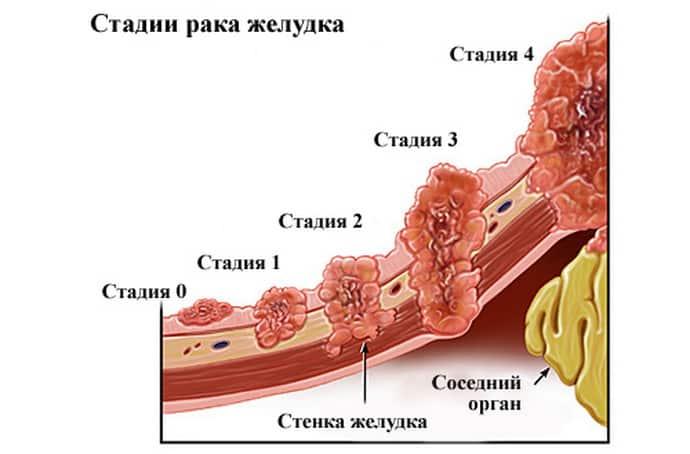 Может ли рак быть причиной жжения в пищеводе