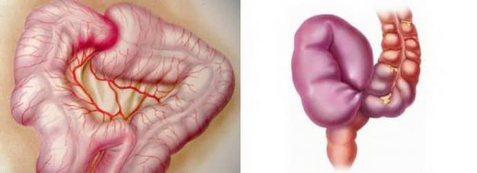 Осложнения при частичной непроходимости кишечника