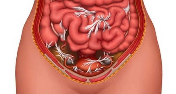 Частичная непроходимость кишечника со спайками