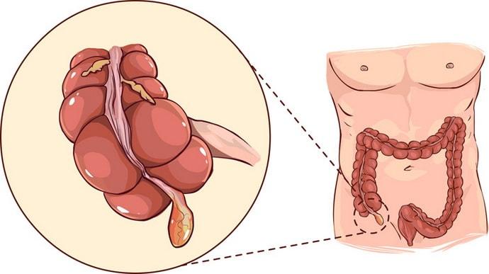 Расположение аппендикса в организме и его функции