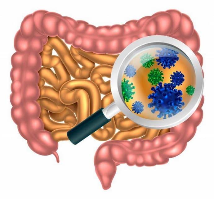 Основные причины дисбактериоза