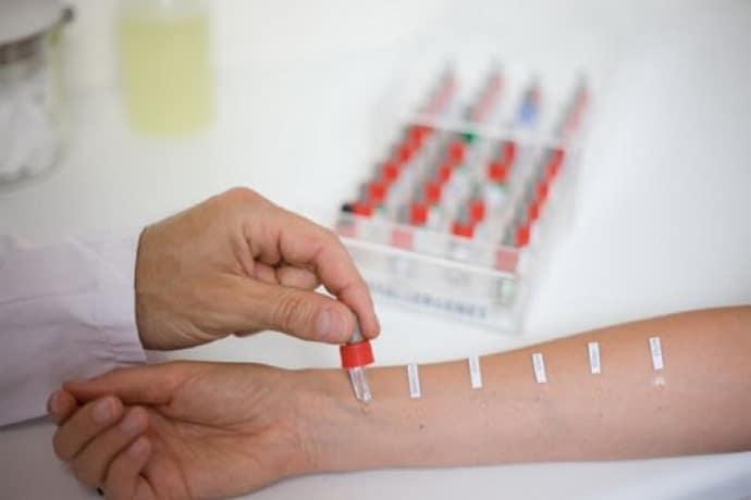 Аллергопробы при дисбактериозе