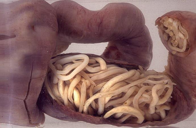 Глисты при дисбактериозе