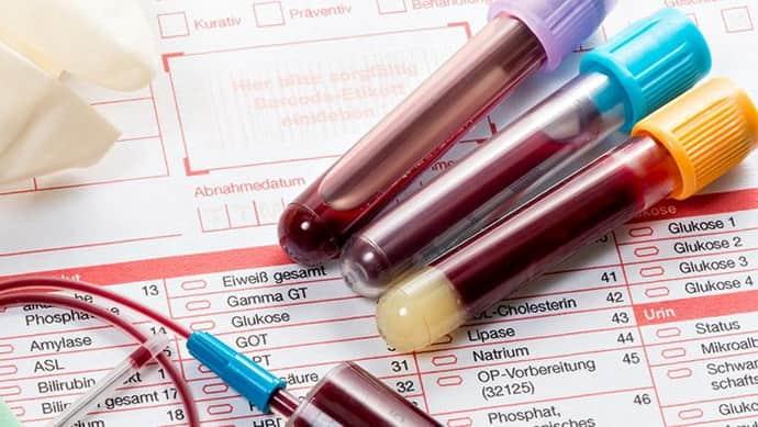 Анализ крови при при эрозивном бульбите