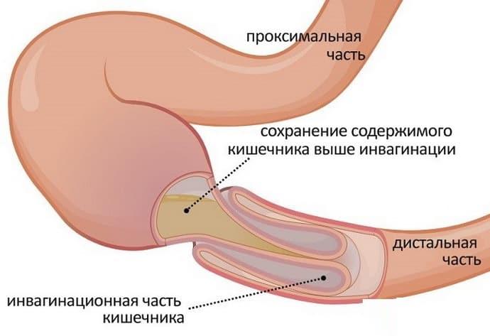 Непроходимость кишечника при аппендиците