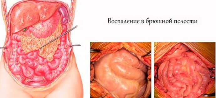 Перитонит при флегмонозном аппендиците