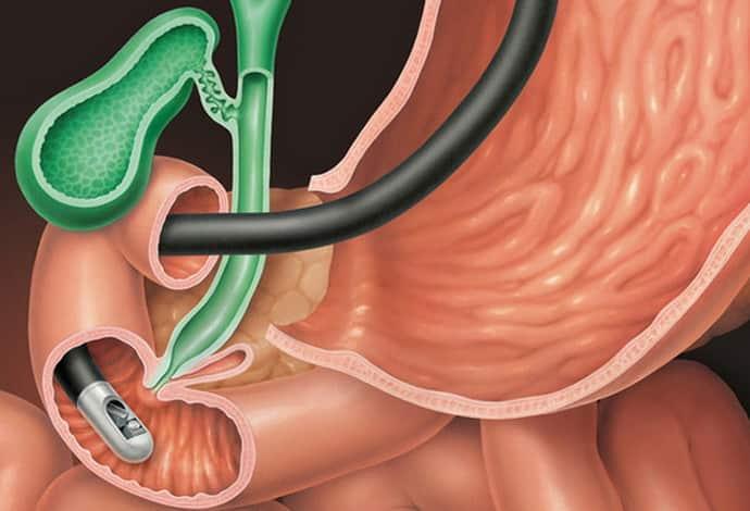 диагностика при фолликулярном бульбите
