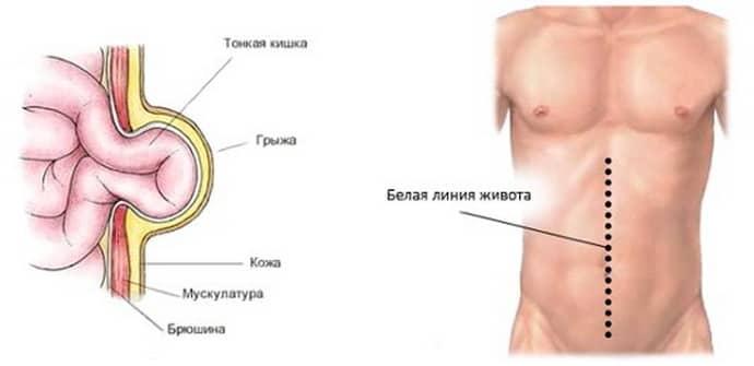 Осложнения после гангренозного аппендицита