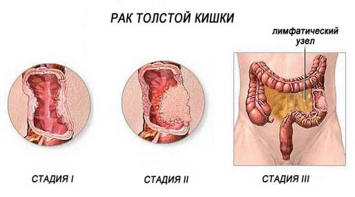 Причины гнойного аппендицита