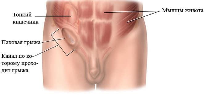 Причины появления грыжи после аппендицита и методы лечения такого осложнения